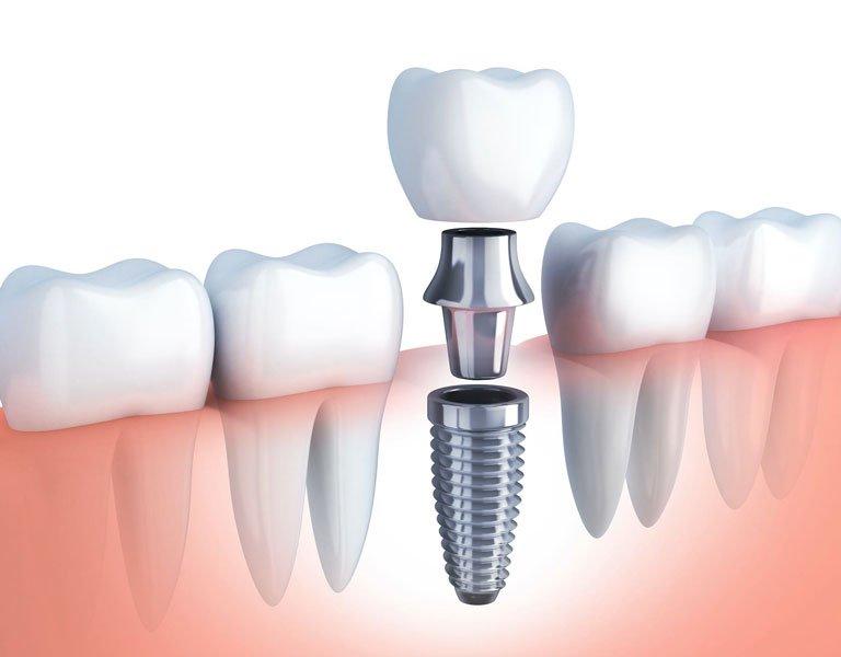 implante-dental